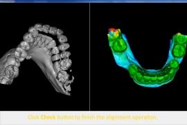 screenshot-implantplanning-06