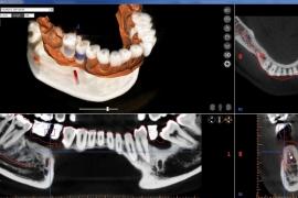 screenshot-implantplanning-02