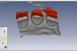 screenshot-dentdesigner-03