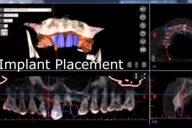 screenshot-implantplanning-01